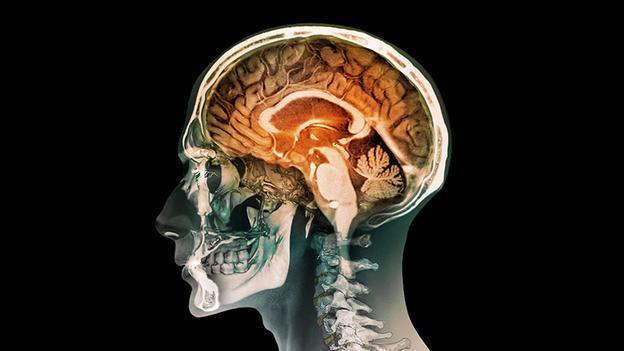 بدون یک نیمکره مغز به صورت عادی زندگی کنیم!